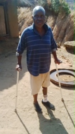 Mr W.Songwe with a Prosthesis